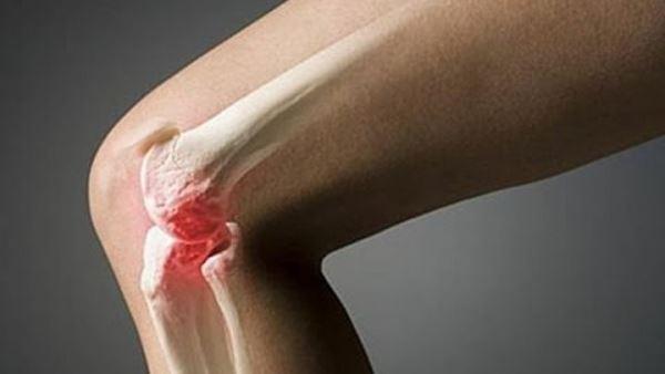 УЗИ коленного сустава при артрозе