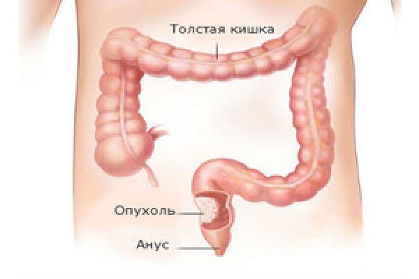 Путь к раку кишечника лежит через желудок